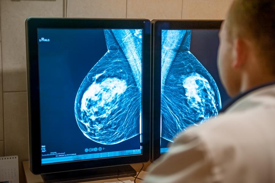 Imagen Ecografía mamaria y mamografía digital