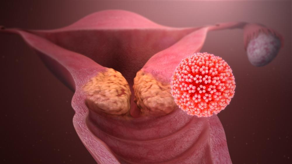 Diagnóstico y tratamiento del Virus del Papiloma Humano
