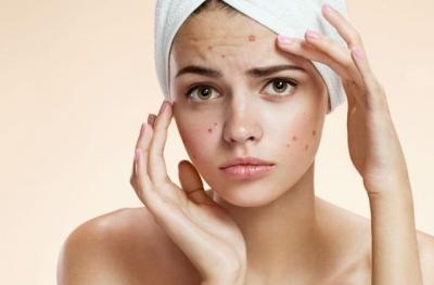 Causas del acné y cómo eliminarlo