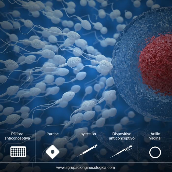 Anticoncepción hormonal: píldora, anillo, implante hormonal, inyección, parche y DIU