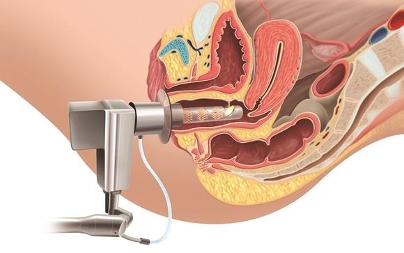 Un láser de C02 para el tratamiento integral de la zona íntima femenina