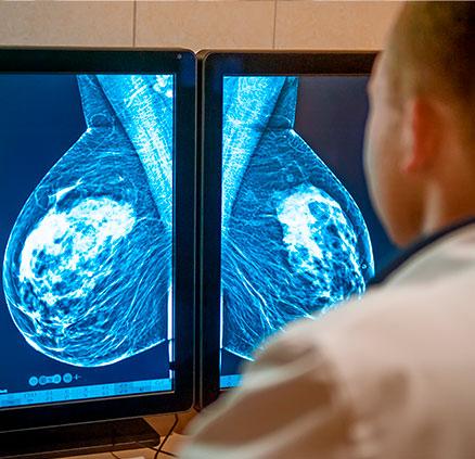 Imagen tratamiento Diagnóstico por imagen